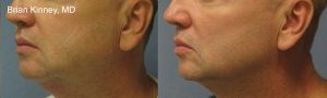 B Kinney, MD_300dpi_male neck