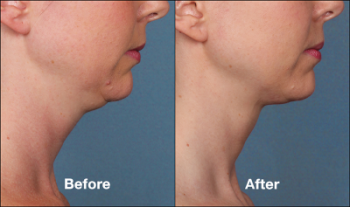 kybella in chicago
