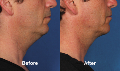 chicago kybella before and after