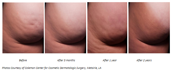 cellfina before and after cellulite reduction